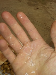 skin covered in salt from the tap water